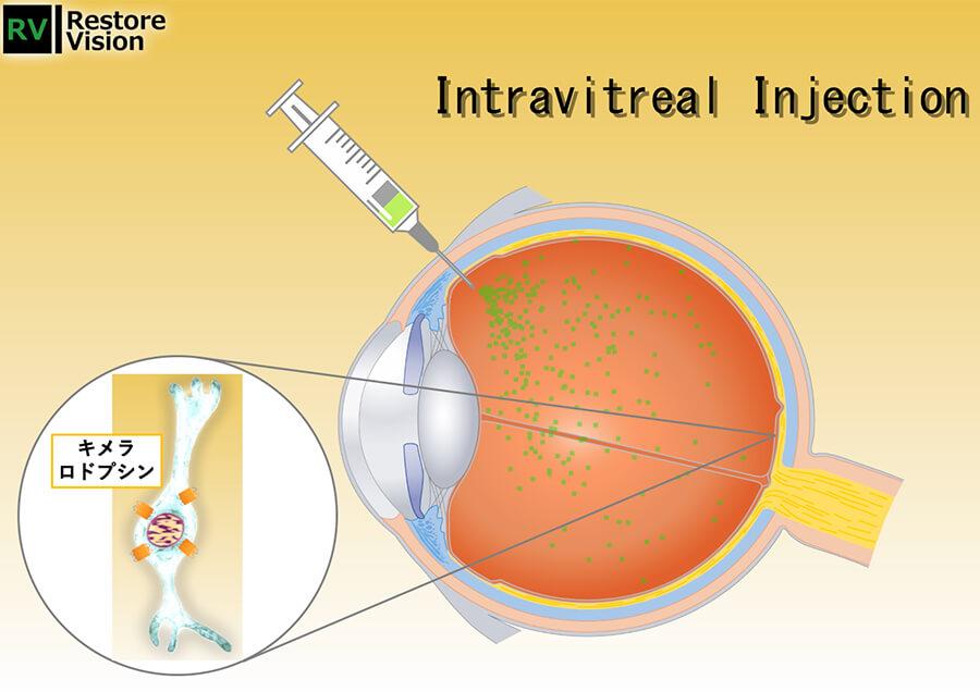 網膜色素変性症に対する視覚再生遺伝子治療薬の開発